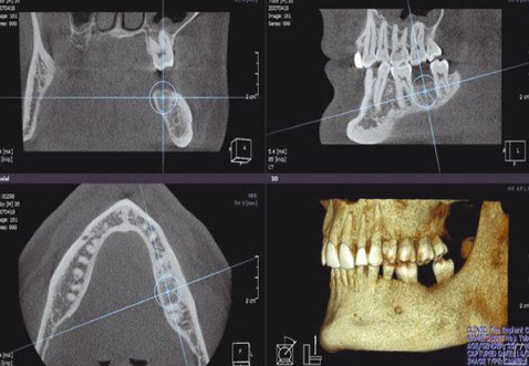 3D scan image of persons jaw