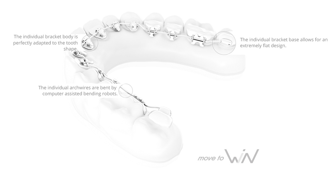 informative diagram of win braces