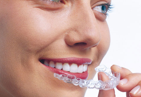 smiling women inserting her transparent retainer