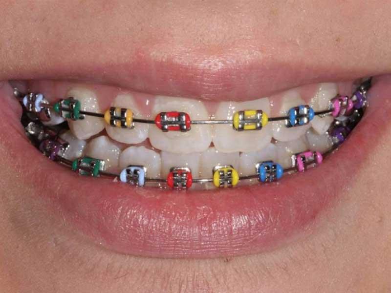 smile showing coloured braces