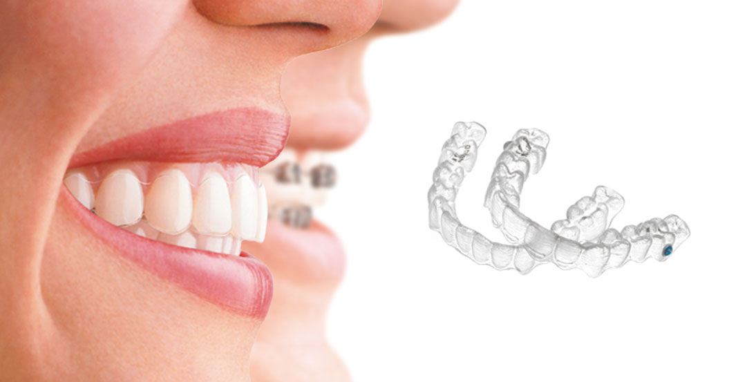 Two people with big smiles next to invisalign braces