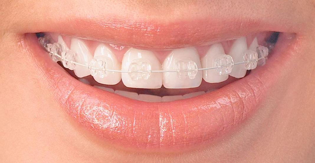 smile showing radiance braces