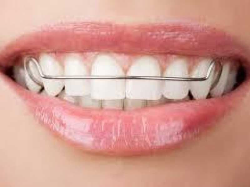 smile showing metal removable brace